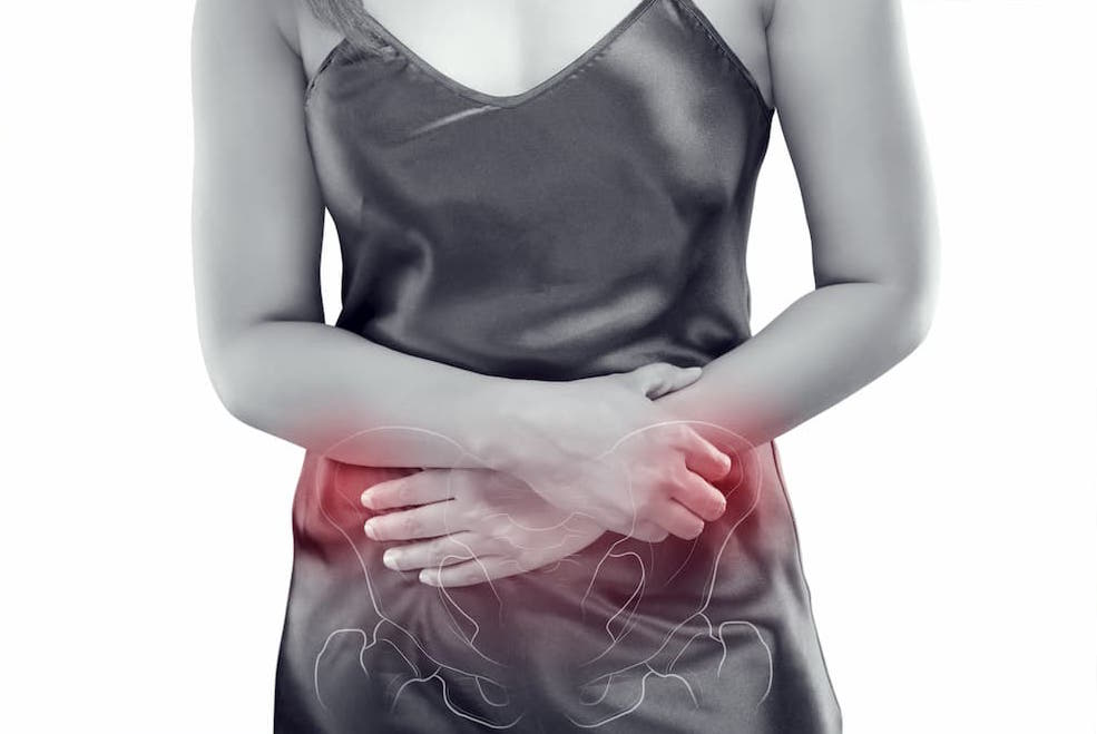 Pelvic Congestion Syndrome and Chronic Pelvic Pain