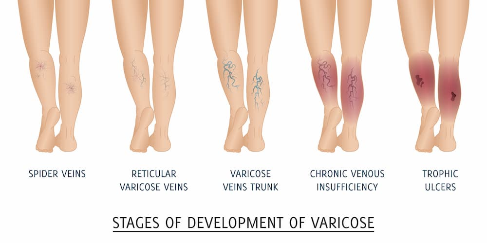 Stages Of Development Of Vein Disease
